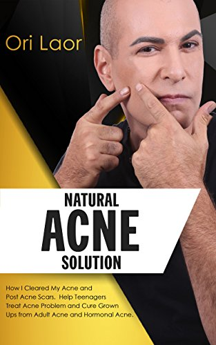Natural Acne Solution: How I Cleared My Acne and Post Acne Scars. Help Teenagers Treat Acne Problem and Cure Grown Ups from Adult Acne and Hormonal Acne (Anti Aging Book 2) (English Edition)